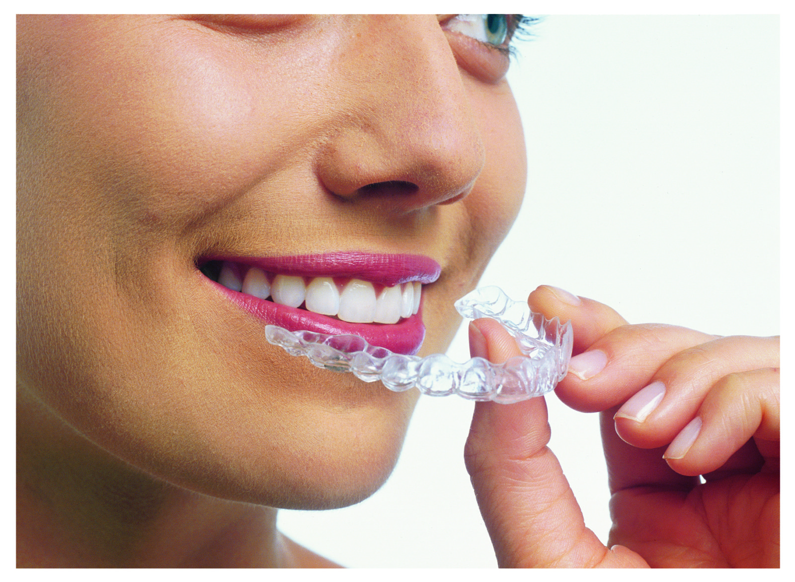 Retainer that looks like braces